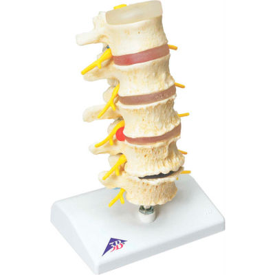 3B® Anatomical Model - Vertebrae Degeneration, Stages of Prolapsed Disc