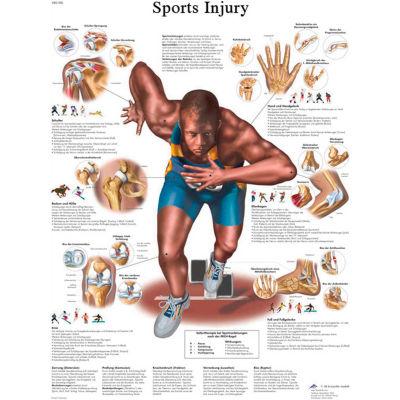 3B® Anatomical Chart - Sports Injuries, Sticky Back